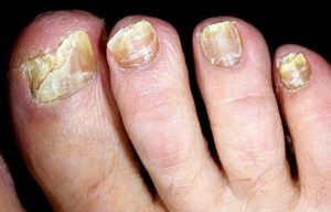 Деформация ногтей на ногах причины и лечение