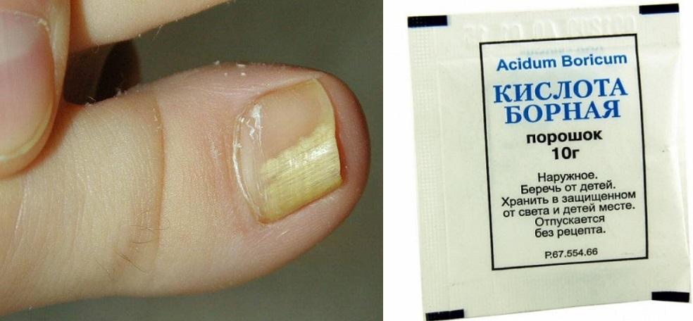 Лечение и профилактика грибка ногтей борной кислотой