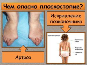 Искривление спины и артроз