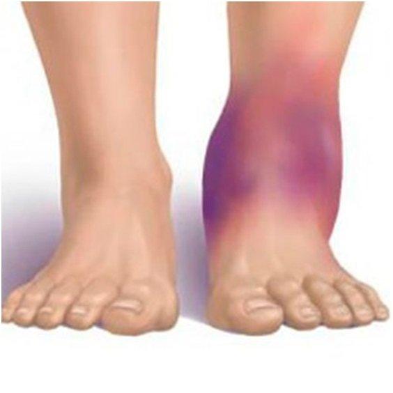Вывих стопы: симптомы, признаки и лечение в домашних условиях