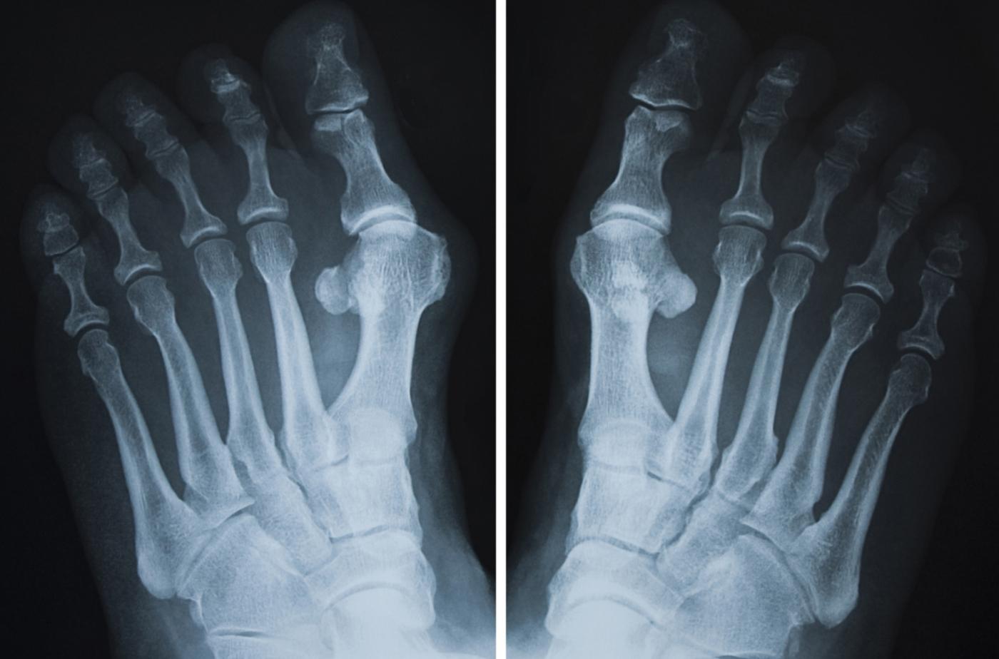 Выпирающая косточка на рентгеновском снимке