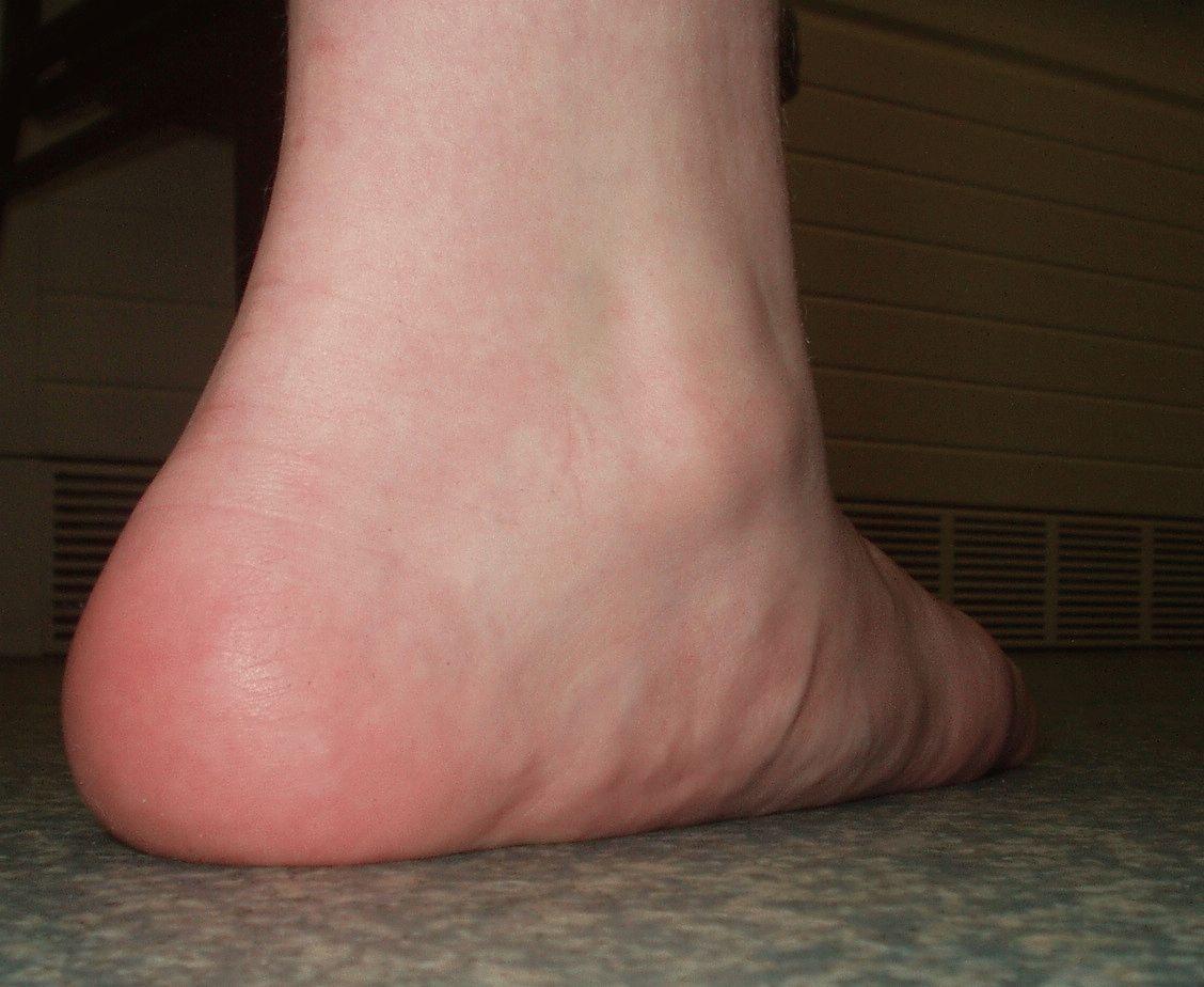 Плоскостопие первой второй и третьей степени причины лечение и типы деформации стопы