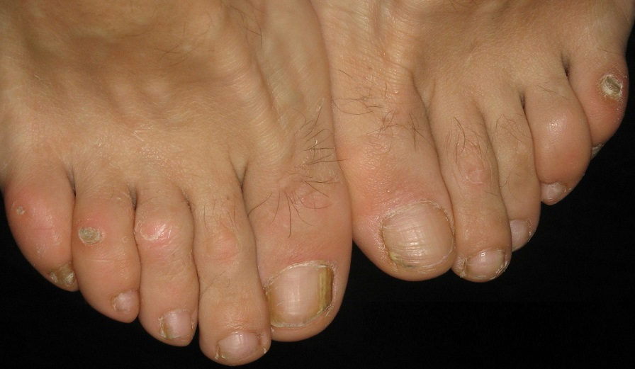 на пальцах ног мозоли фото