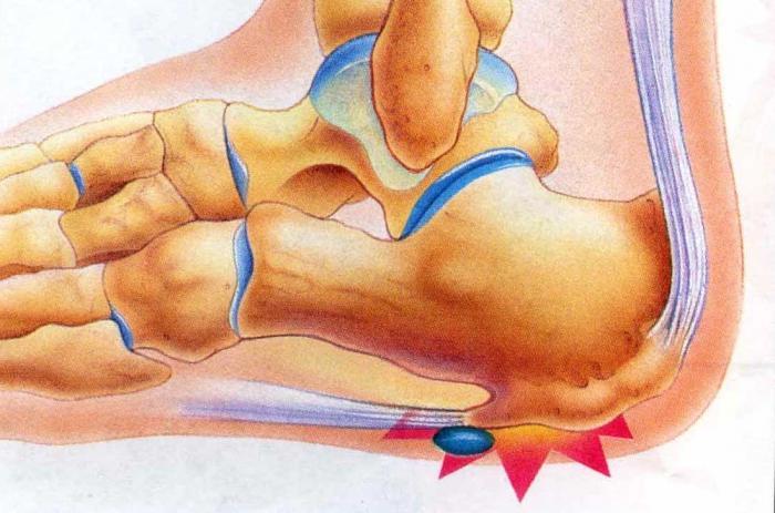 Пяточная шпора на стопе: причины появления, симптомы и признаки, методы лечения