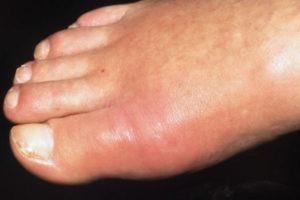 Воспаление большого пальца