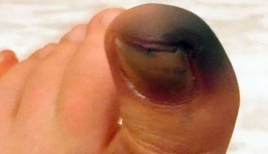 Почему чернеет палец на ноге: причины, симптомы, лечение и ...