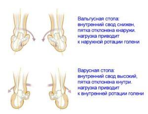 Описание вальгусной и варусной стопы