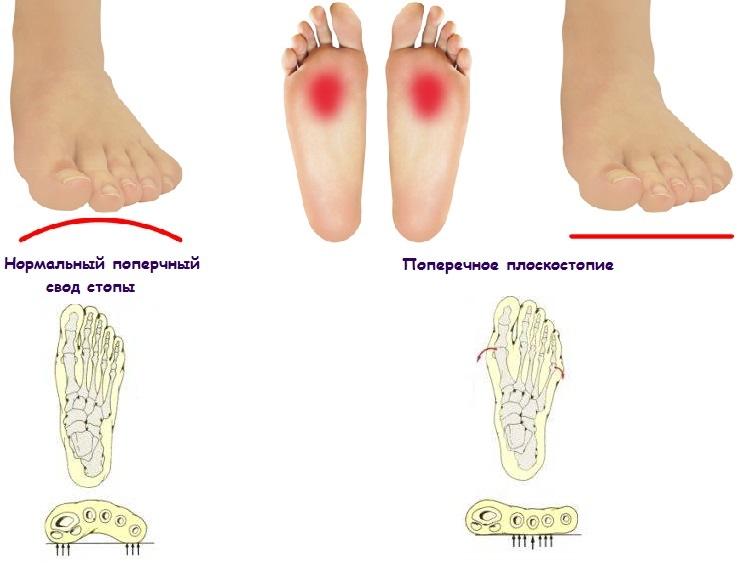 Продольное и поперечное плоскостопие: различие, симптомы и лечение