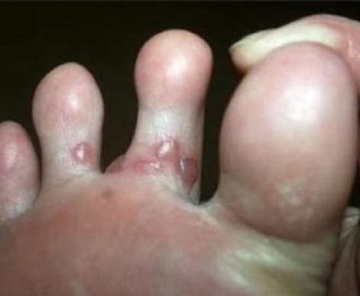 фото как бывает если грызть ногти