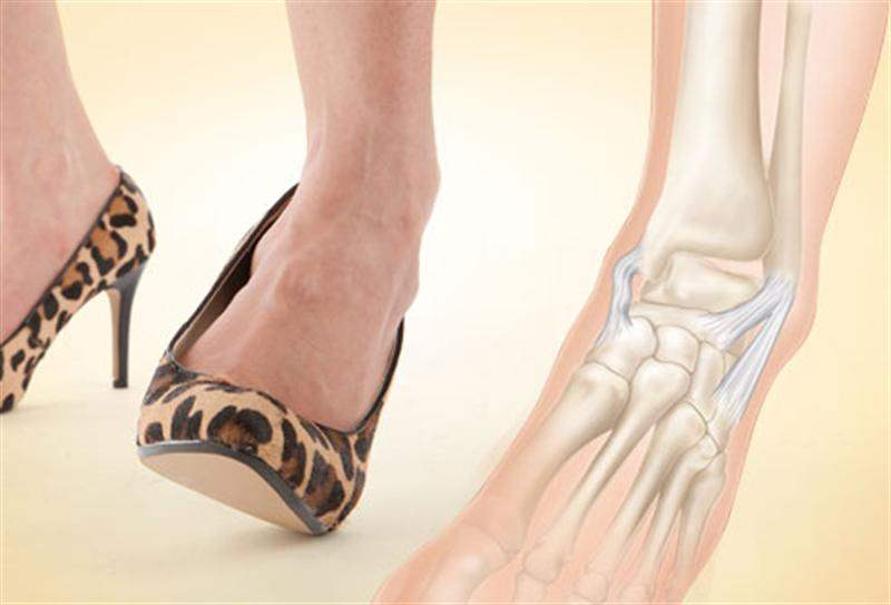 Травма лодыжки на высоком каблуке