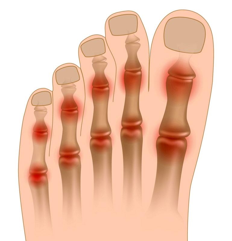 Боли в суставах пальцев ноги как правильно зафиксировать локтевой сустав эластичным бинтом при занятиях бадминтоном