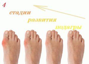 Четыре стадии развития заболевания