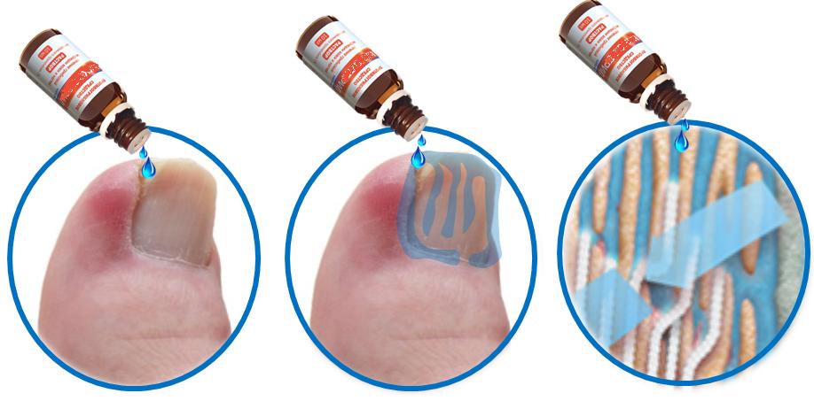 Удаление грибкового ногтя на ноге