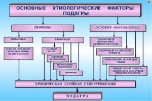 Схема этиологических факторов заболевания