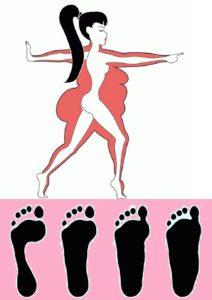Лишний вес и развитие плоскостопия