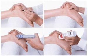 Этапы лечения УВТ