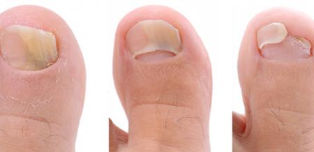 Фото ногтей на руках с грибком
