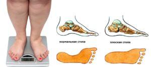 Лишний вес и плоскостопие