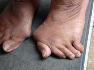 Деформации пальцев стопы из-за артроза