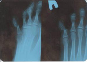 Перелом мизинца на рентгеновском снимке