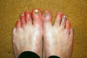 Ожог пальцев ног