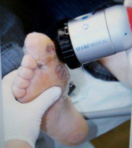 Процедура ударно-волновой терапии