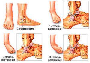 Подвернула ногу болит опухла косточка (в щиколотке). Что делать
