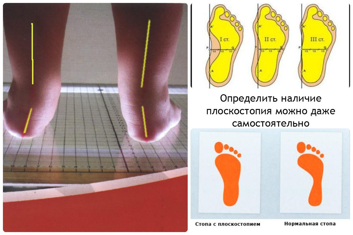 Продольное плоскостопие 1, 2, 3 степени: лечение и диагностика