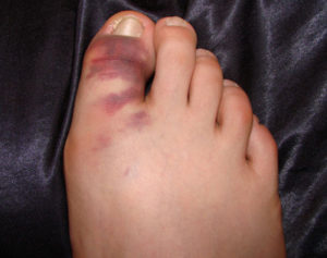 Симптомы вывиха пальца