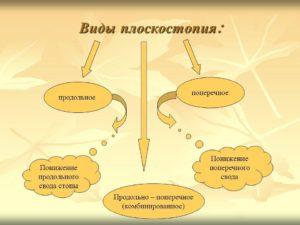 Разновидности плоскостопия