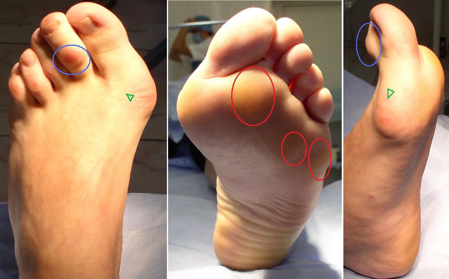 Больно наступать на подушечки ступни ног