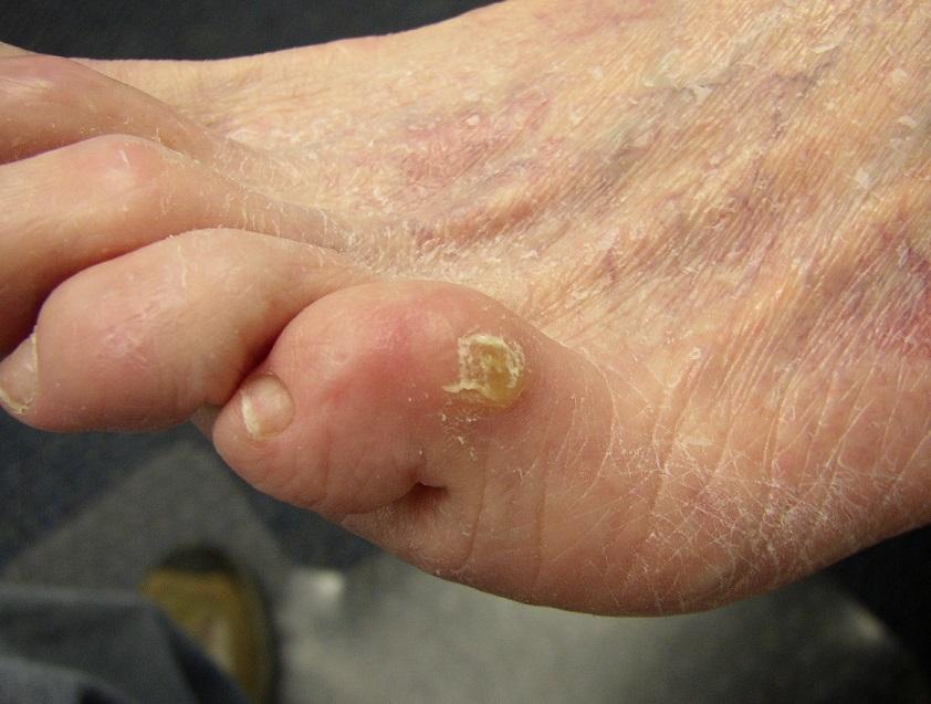 Ноготь мизинца на ноге болит
