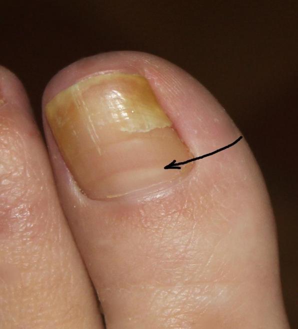Болит ноготь на большом пальце грибок