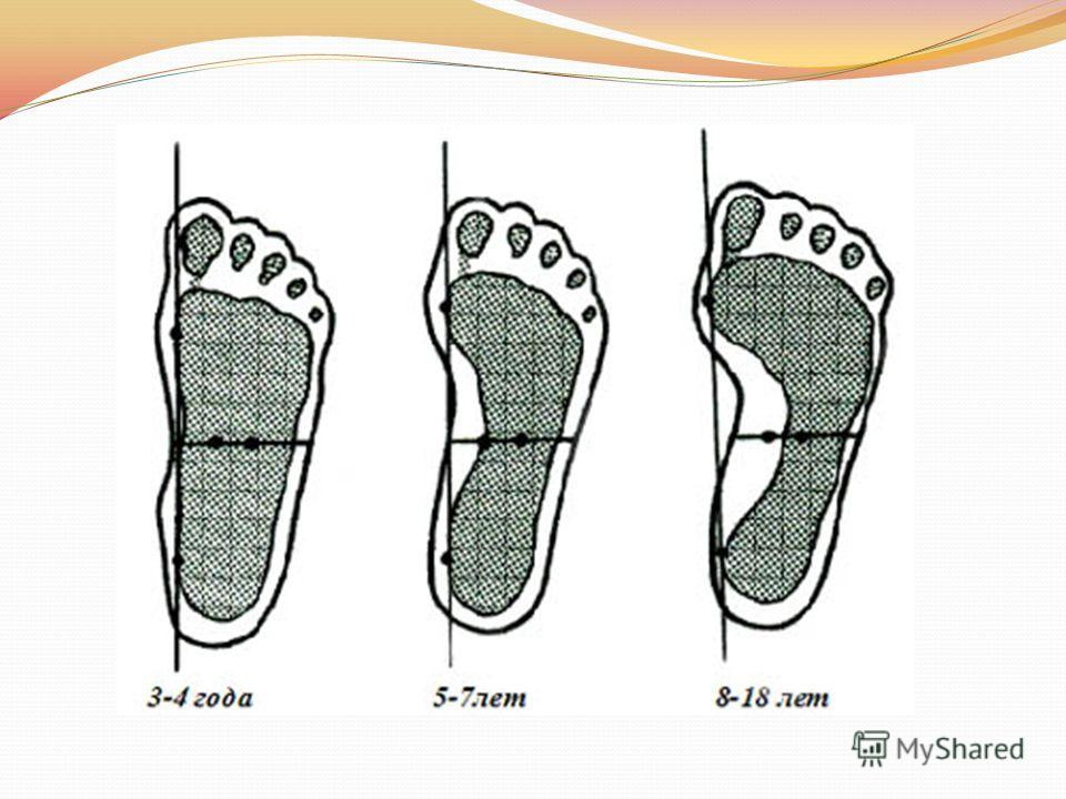 Виды массажа при плоскостопии