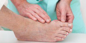 Обследование косточки на большом пальце