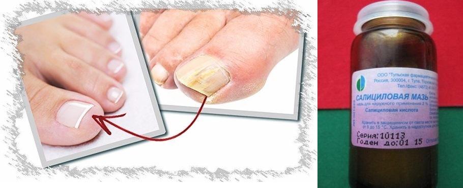 Лечение грибка ногтей салициловой мазью. Салициловая мазь от грибка ногтей.