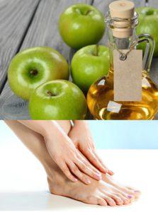 Яблочный уксус и стопы