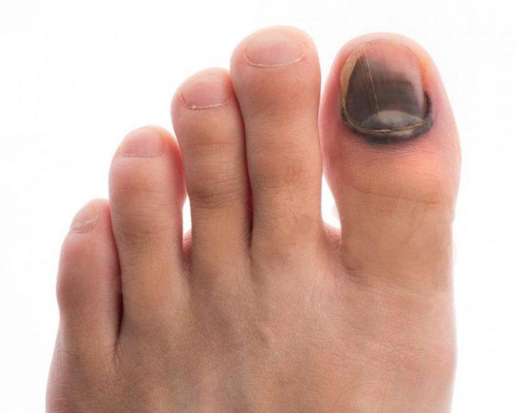 Потемневший ноготь и кожа на большом пальце