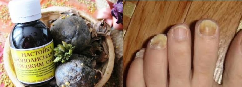 Настойка прополиса и пожелтевшие от грибка ногти
