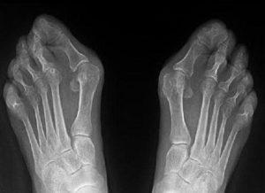 Рентгеновский снимок деформированных стоп
