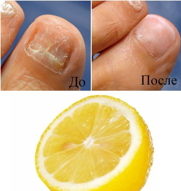 До и после лечения ногтя лимоном