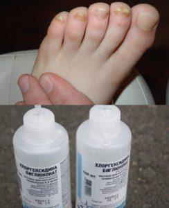 Грибок ногтей и Хлоргексидин