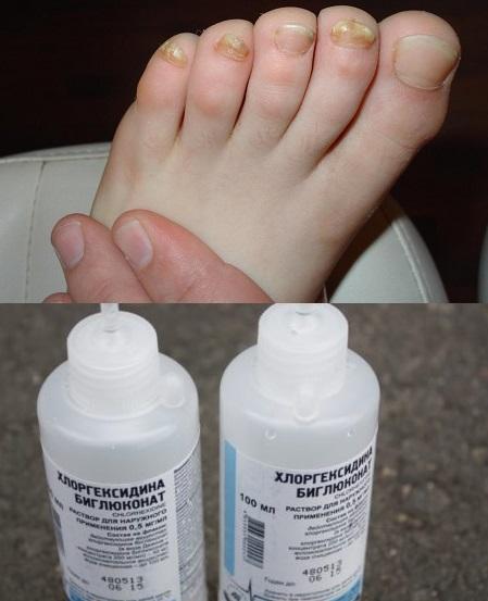 Хлоргексидин от грибка ногтей: принцип лечения и особенности ...