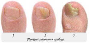 Деформация ногтя в зависимости от стадии