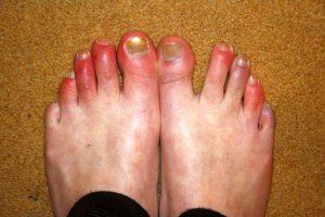 Обморожение пальцев ног