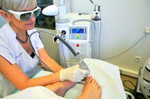 Оборудование для лазерного лечения грибка