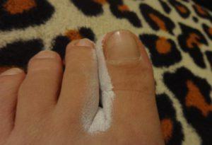 Теймурова паста между пальцами