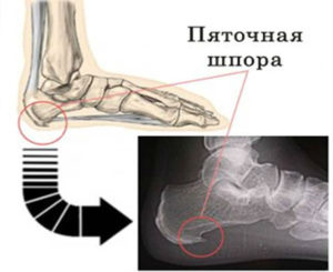 Пяточная шпора на рентгеновском снимке