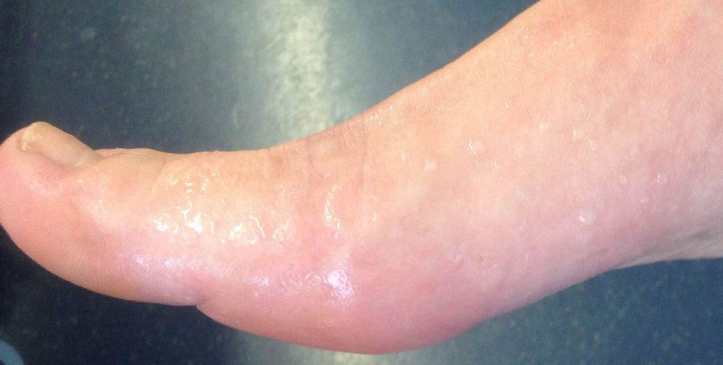Гипергидроз ног лечение