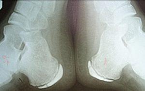 Рентгеновский снимок пяток